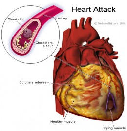 Heart attack, being caused due to blockage in arteries.