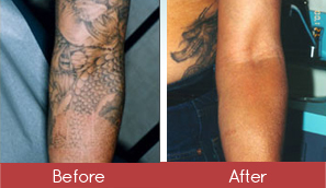 Tattoo Removal Before and After Picture