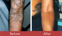 What to expect during laser tattoo removal