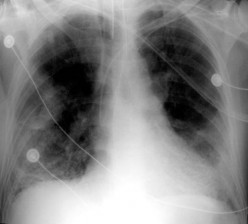PULMONARY INSUFFICIENCY, (RESPIRATORY FAILURE)