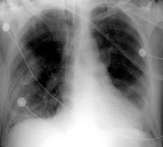 X-ray of patient with chronic bronchitis (COPD) and respiratory failure. The signs are characteristic to main disease.