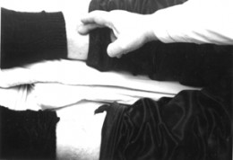 Edemas of the legs