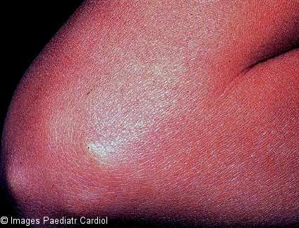 Subcutaneous nodules are rarely seen and when present, they are usually associated with severe carditis. They are painless, firm, movable, measuring around 0.5 to 2 cm. They are usually located over extensor surfaces of the joints, particularly knees