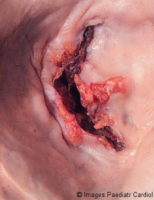 Stenotic mitral valve seen from left atrium, showing fusion of commissures, thickening and calcification of the cusps