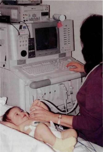 A Baby Getting an Echocardiogram