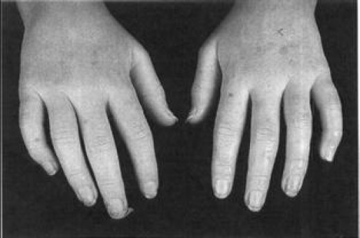 The rash in this child was due to the use of naproxen, and occurred in sun exposed areas of the skin. It resolved gradually over several years after cessation of the naproxen.