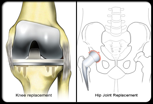 Surgery may be an option to restore joint mobility, repair damaged joints, or in worst case scenarios, total artificial joint replacement.