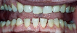 Widening of teeth in Acromegaly