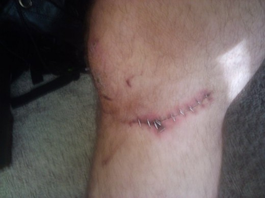 stitches inside, and stapled close.