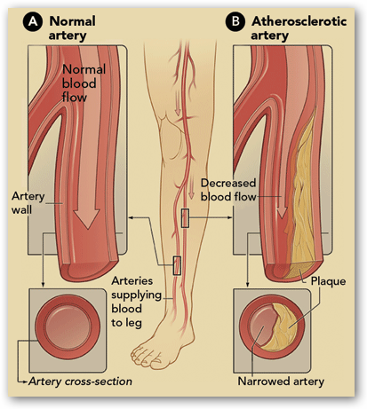 narrowing of the femoral artery