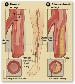Diabetes, Peripheral Vascular Disease and Limb Amputations