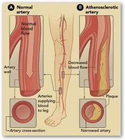 Diabetes, Peripheral Vascular Disease and Limb Amputations