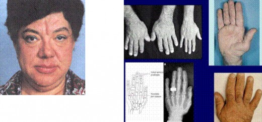Bone overgrowth and soft tissue thickening lead to characteristic coarsening of the facial features. The hands are widened and the fingers become broad, requiring a larger  ring size. Similar changes in the feet require a larger shoe size. This incr