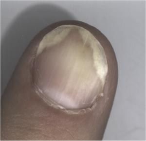 Psoriasis on a fingernail.