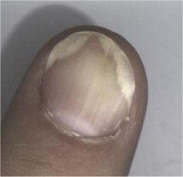 Psoriasis on a finger nail.