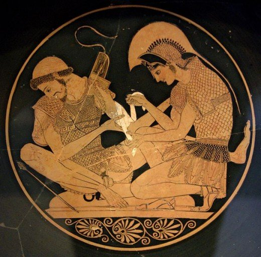 Achilles tending the wounded Patroclus from the Iliad