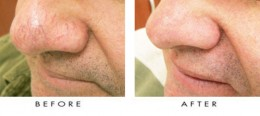 The spider veins on the nose of the patient were treated with a laser at Nu Vela Esthetica, Los Angeles.