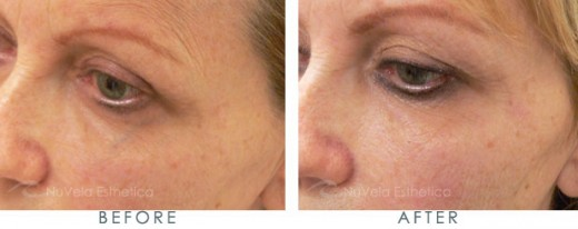 The under eye reticular vein of this patient were ablated using an Nd:YAG laser. The procedure was performed by Dr. R. Dishakjian of Nu Vela Esthetica, Los Angeles.