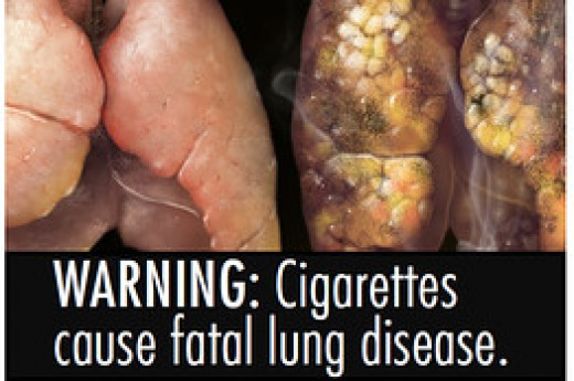 People who smoke already know that what theyre doing isnt good for them. But they also may be in denial about their particular risk of disease, since accepting the fact of a threat to health is very distressing, he says. Either way, the images alone