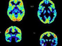 Psychopaths, Justice & the Brain Scan Imaging Debate - A Wasted Opportunity