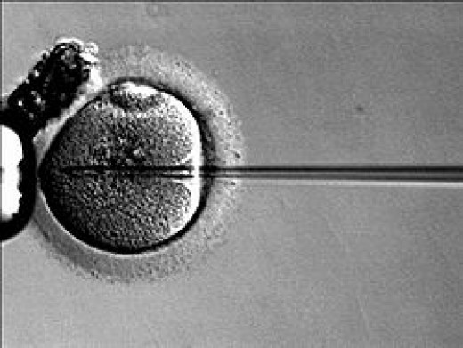 Sperm is injected directly into the egg in a lab. This is called an ICSI injection.