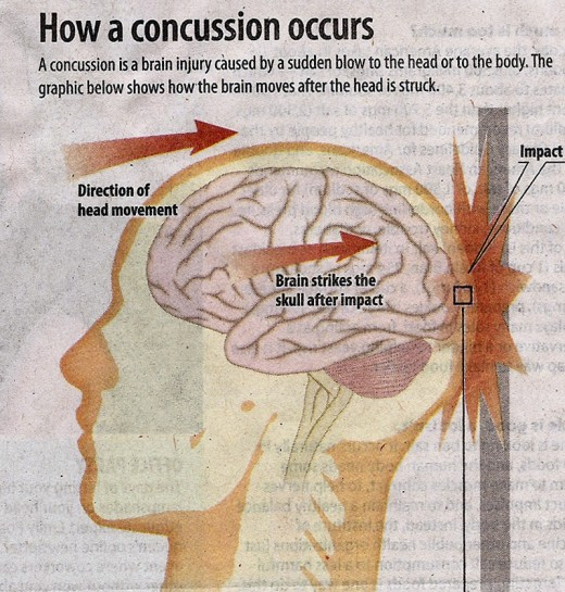 Head Trauma Concussions Can be Serious HubPages