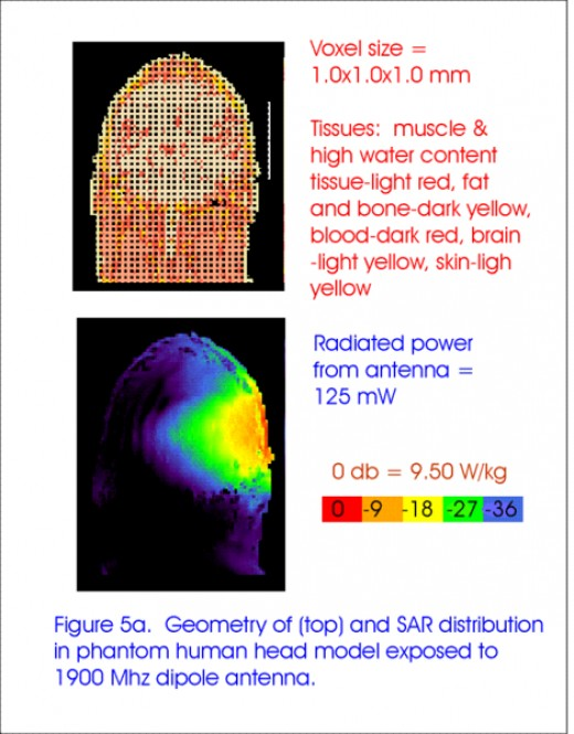 Cell phone radiation to head. (Image credit: ObsidianOrder thru WikiMedia Commons)