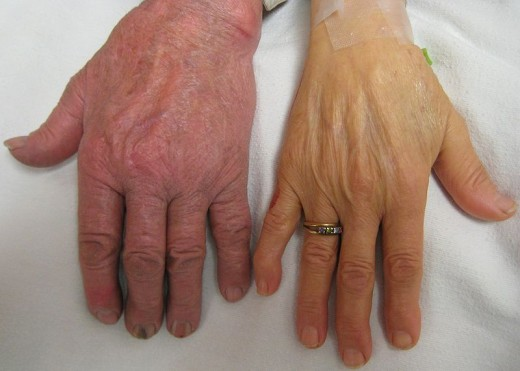 A person's hand having severe anemia (right) compared to a normal hand.