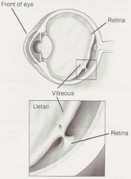 Detailed image of vitreous pulling away from the retina.