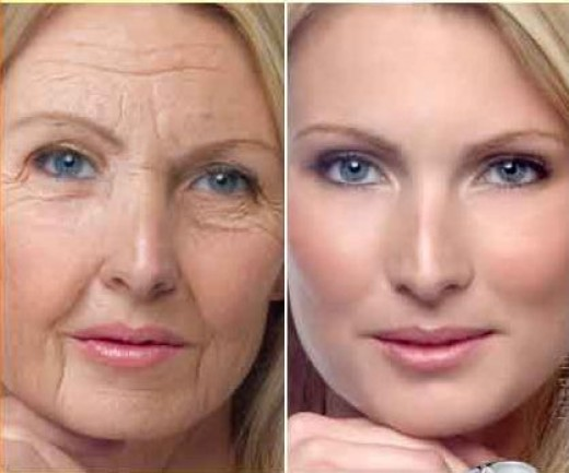 The difference made by Retinol A Cream