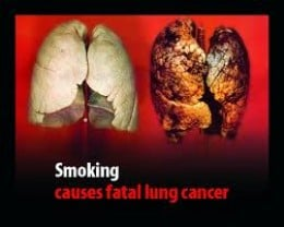 Just one of the photographs printed on UK cigarette packs