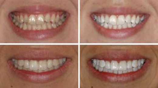 Before and after at-home teeth whitening