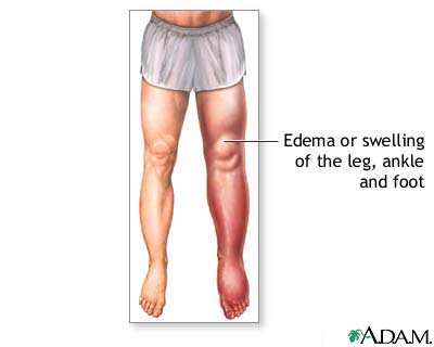 Oedema of the left leg