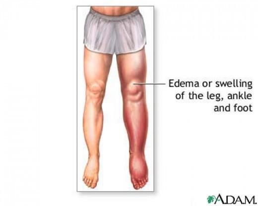 Oedema of the left leg