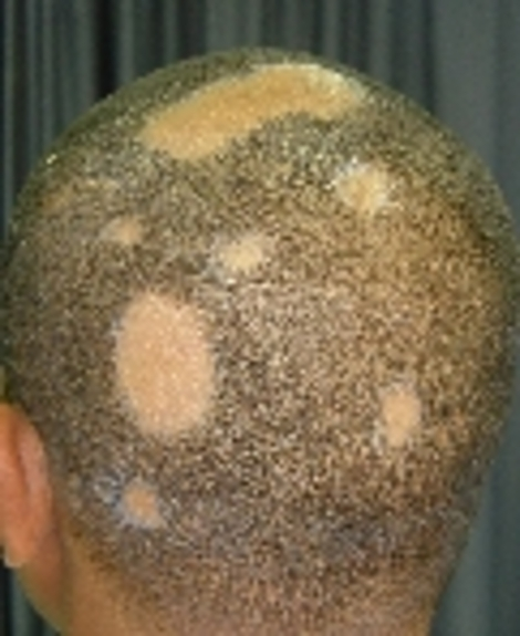 How it usually presents: coin shaped pattern baldness.
