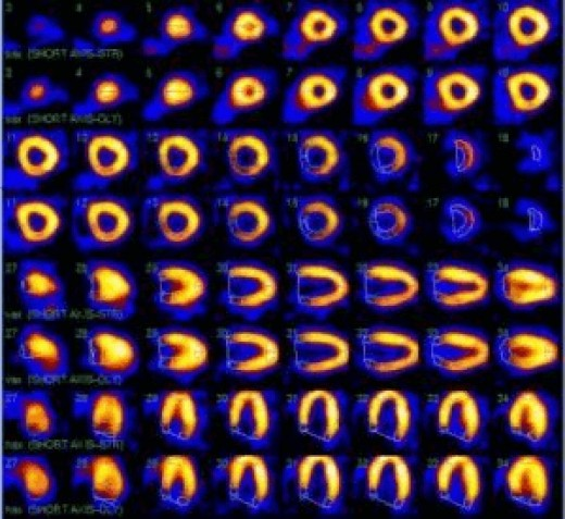 Images of a heart perfusion nuclear scan