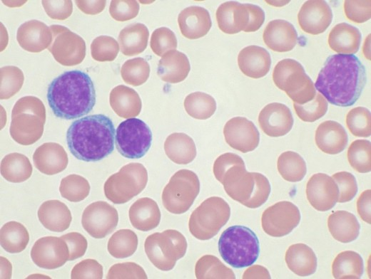 Chronic Lymphocytic Leukemia - the dark cells are the CLL cells.