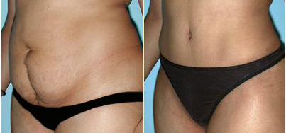 abdominal liposuction before and after