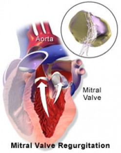 What Is Mitral Valve Prolapse