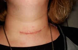 Thyroid Cancer:  My Personal Journey