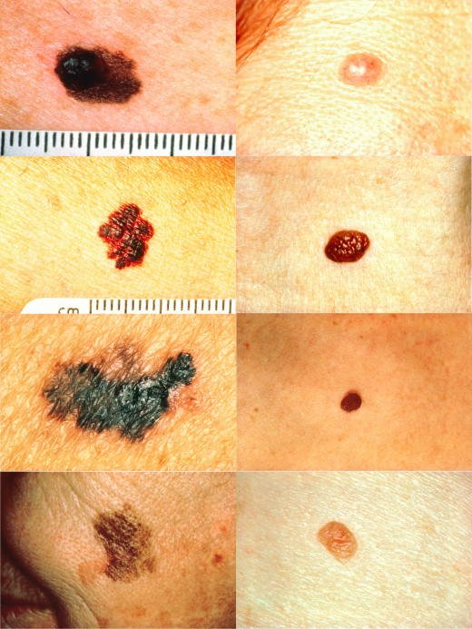 On the left, examples of melanomas. On the right, normal skin moles.