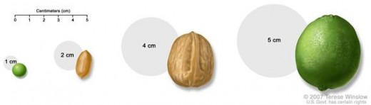 Pea, peanut, walnut, and lime show tumor sizes.