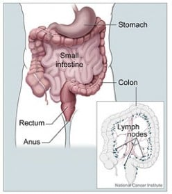 Urinary Tract Infections and Proteus mirabilis