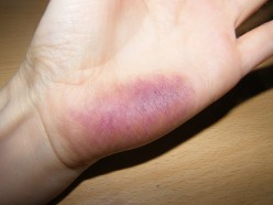 Fake Injuries: How to Make a Fresh Purple Bruise and a Yellow Healing Bruise with Everyday Makeup.