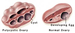 Polycystic Ovary Syndrome | Symptoms & Treatments of PCOS