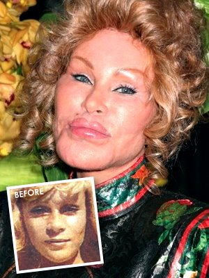 New York Socialite, Jocelyn Wildenstein.  She resorted to plastic surgery to keep her husband.  Guess what?  It didn't work.