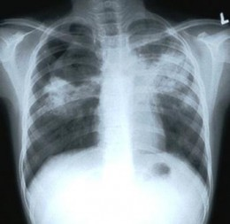 chest X-ray showing shadows caused by TB