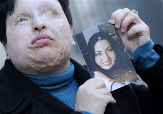 A young woman, once beautiful , after acid was thrown in her face. Usually this treatment is a result of something so drastic as speaking to a member of the opposit sex.