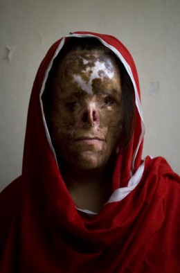 RESULTS OF SHARIA LAW This once pretty girl disfigured beyond repair by acid.