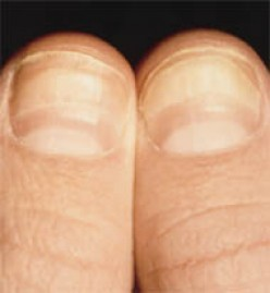 Zinc deficiency causes bands on fingernails